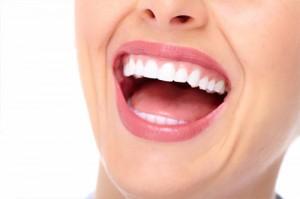 Dental restorations, inlays and onlays
